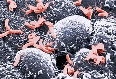 Helicobacter-pylori-bacteria_image